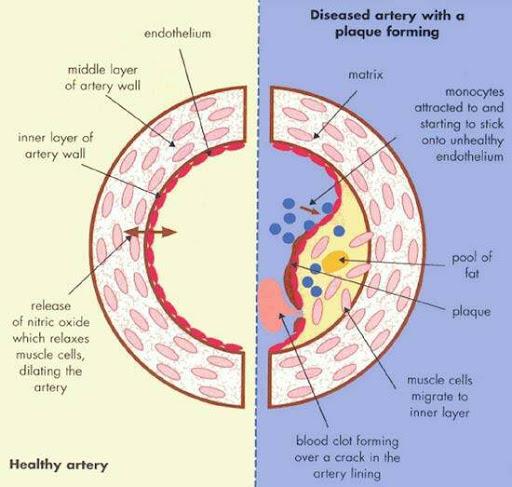 Vitamin C Dan Penyakit Jantung Koronari Artery